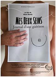 Affiche : Mes deux Seins - Journal d'une guérison